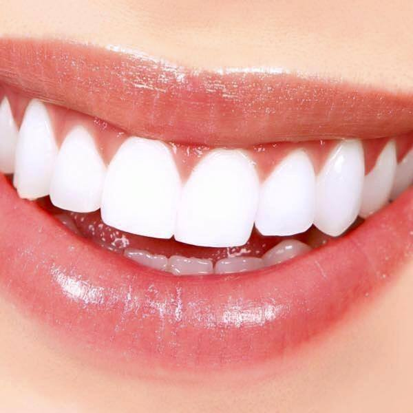 Teeth Whitening: 5 Things to Know About Getting a Brighter Smile