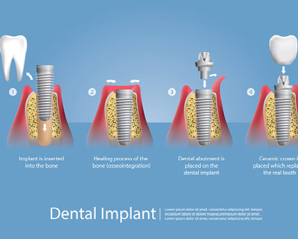 Dental implants and how crucial replacing teeth really is