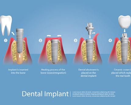 Should You Consider Dental Implants?