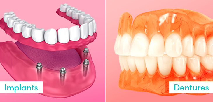 The Differences Between Dentures and Dental Implants
